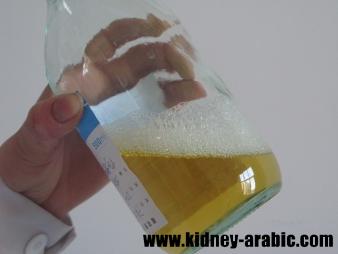 علاج الأمراض الكلية الرغوة في البول عند الرجال Kidney Disease Recipes Kidney Disease Kidney Disease Symptoms