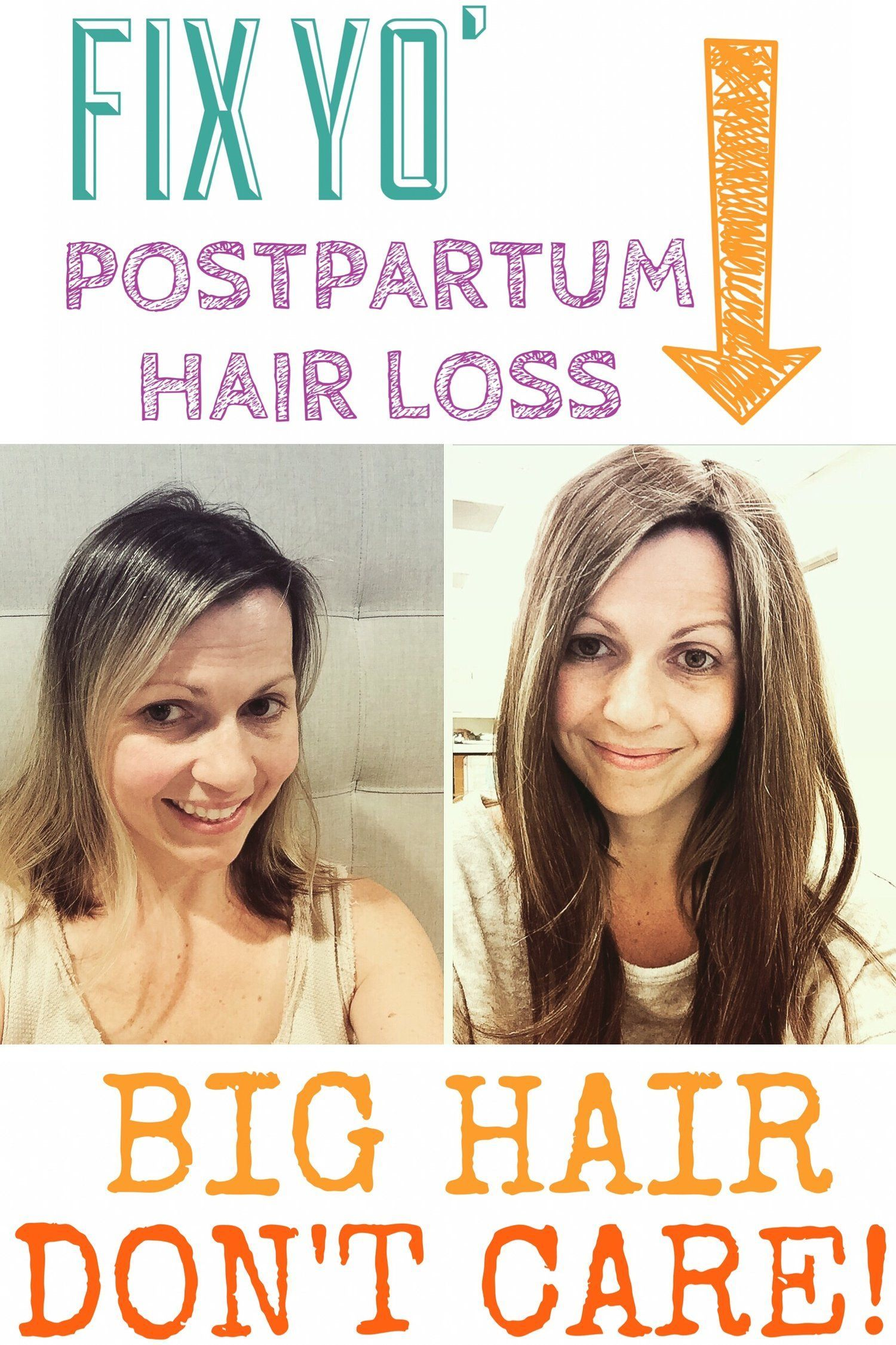 Solutions For Fine Thinning Hair Postpartum Hair Loss Solutions