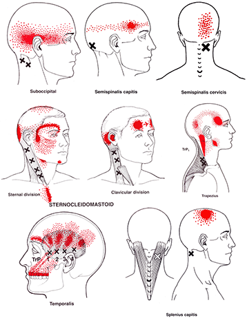 Migraine Triggers Treatment Trigger Point Therapy Points Mage Benefits