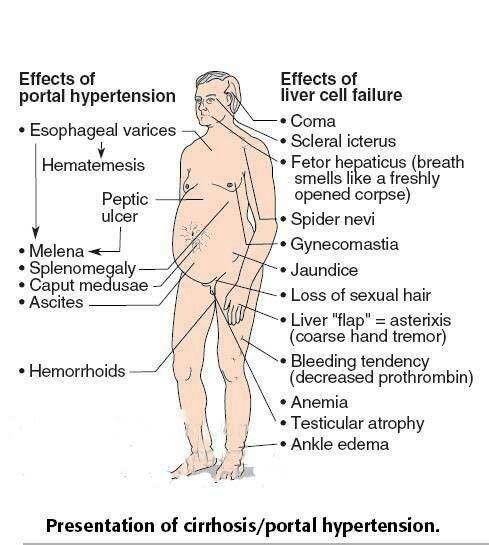 cirrhosis/portal hypertension