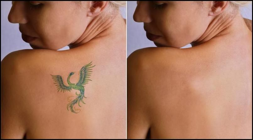 Getting Skin Color Tattoo To Cover Tattoo Tattoo Removal Cost Laser Tattoo Removal Tattoo Removal