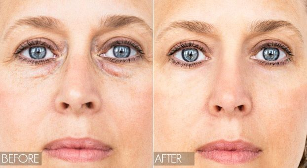 fb42a7ce0fa3765cd7d908294611caa6 - How To Get Rid Of Bags Under The Eyes Instantly