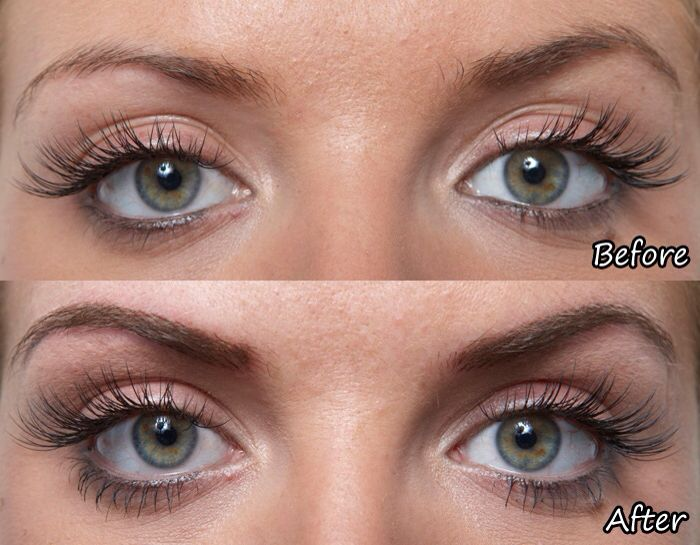 Using Castor Oil Eyebrows Before And After