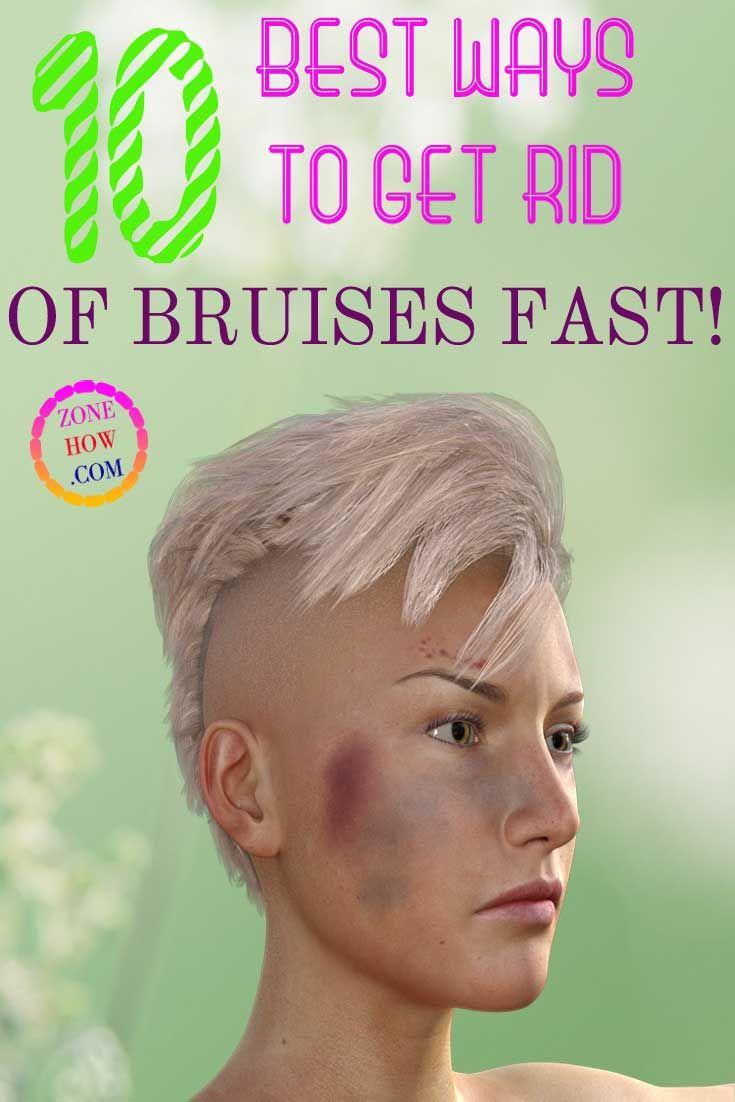fb4d55ee11deb0fd737c6a5a2cd1f5a5 - How To Get Rid Of Bruises On Face Overnight