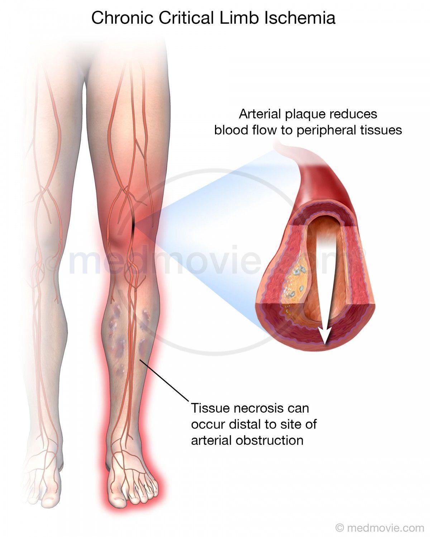 Chronic Critical Limb Ischemia Medmovie