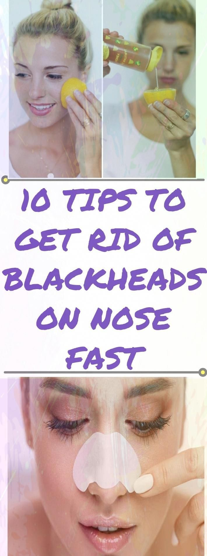 How to Get Rid of Blackheads on Nose? (Fast & Natural Remedies)#health #fitness #healthandfitness  #...