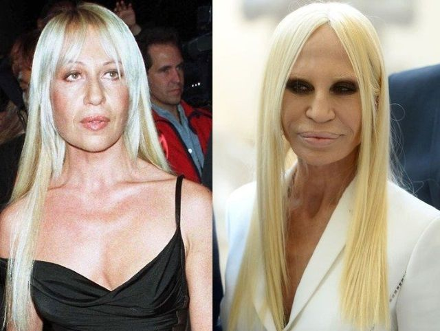 Donatella Versace The World S Most Expensive Celebrity