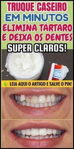 Como Clarear Os Dentes Naturalmente Em Casa Passo A Passo Beleza