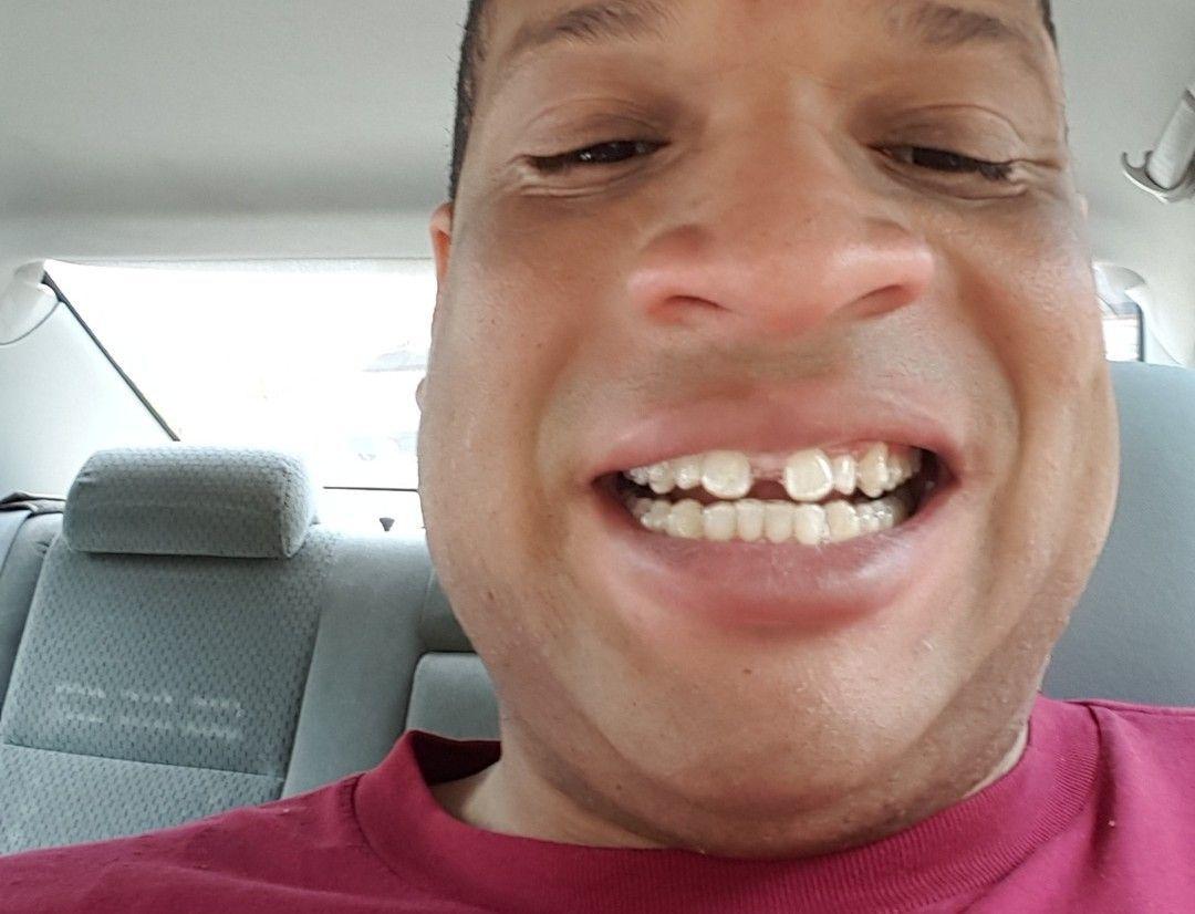 Suna Dumankaya Evde Diş Beyazlatma Formülü