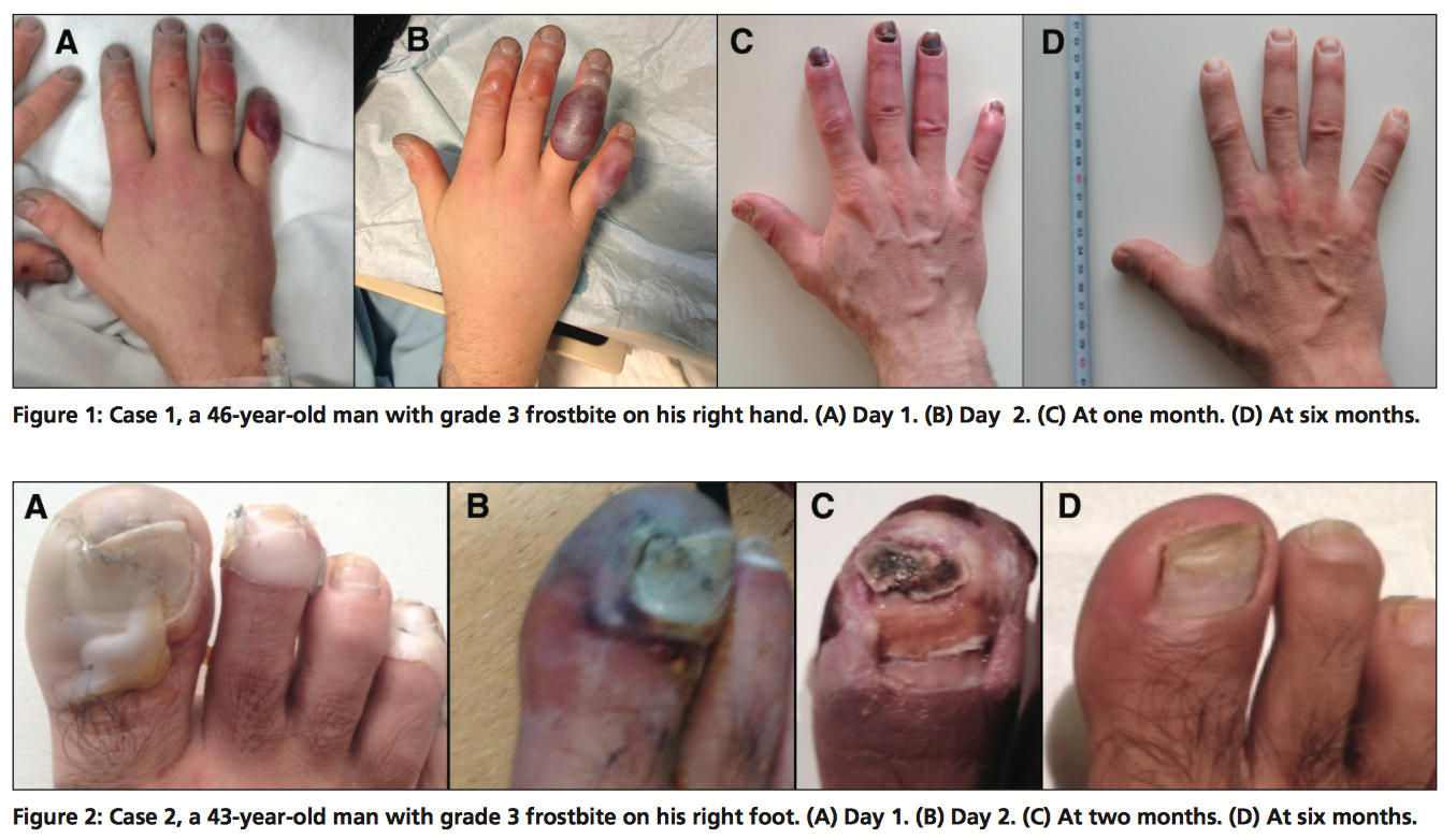 Treatment of severe frostbite with iloprost in northern Canada