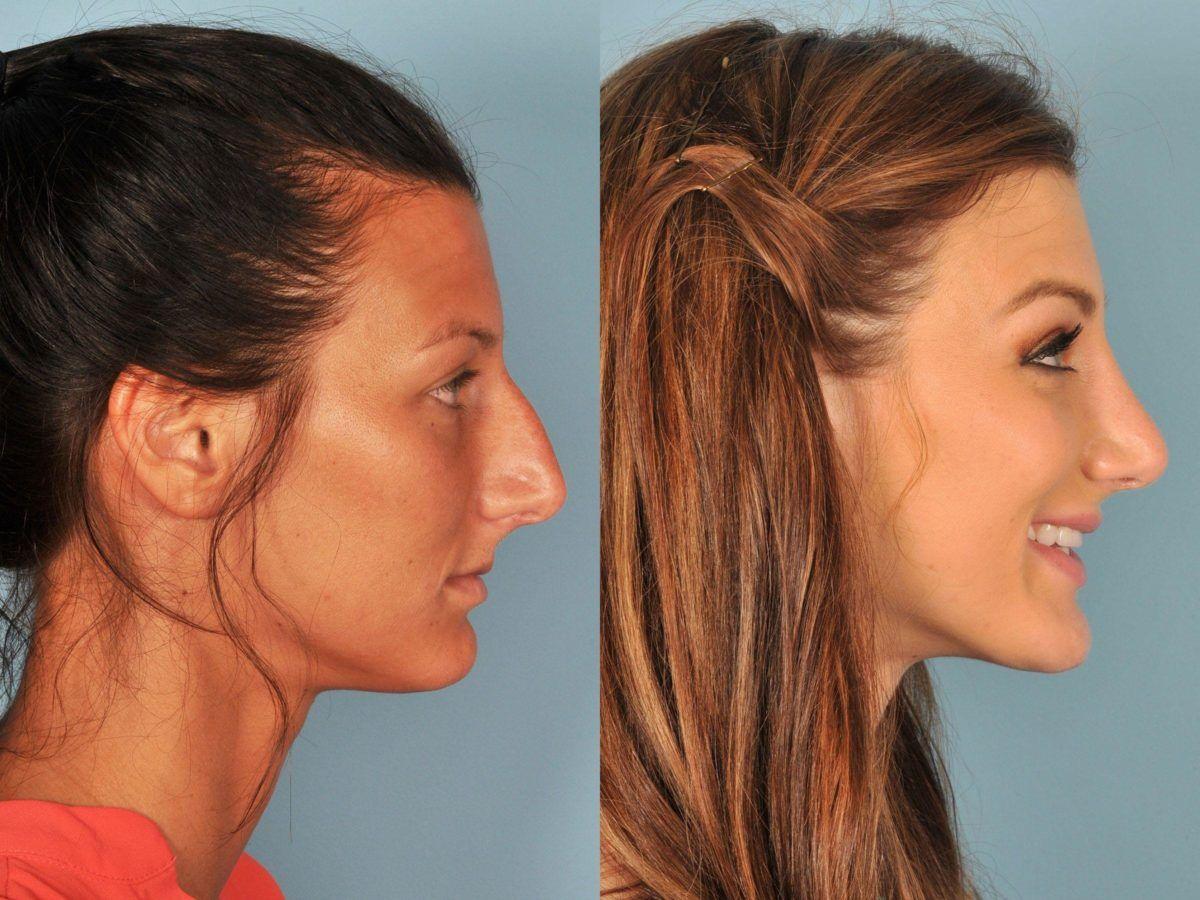 Nose Reshaping Rhinoplasty Photos Nose surgery