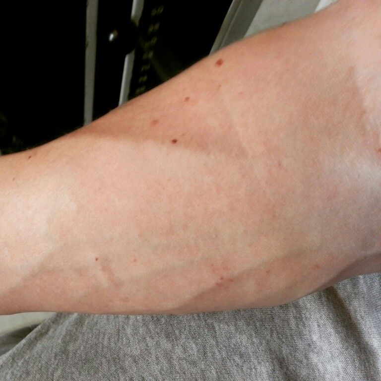 The veins in my arm after the workout the other day! )