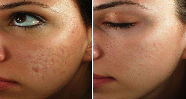 masque la carotte contre les cicatrices d acn skin problems