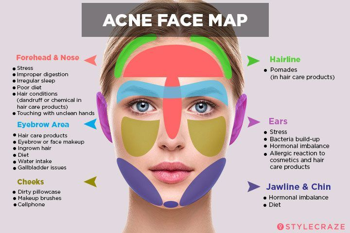 Acne Face Mapping Acne Face Map: What Is Your Acne Trying To Tell You? | Radiant