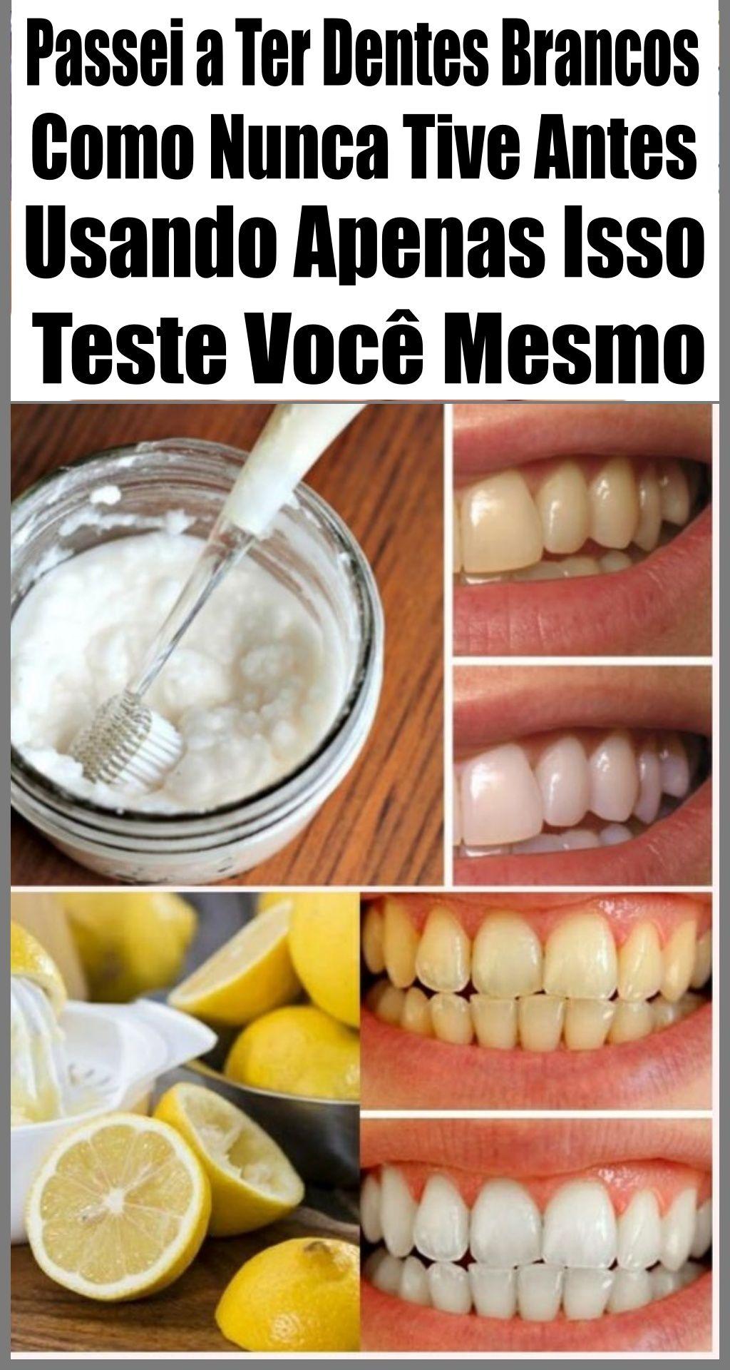 Aprenda Como Clarear Os Dentes Em Apenas 2 Minutos Com Imagens