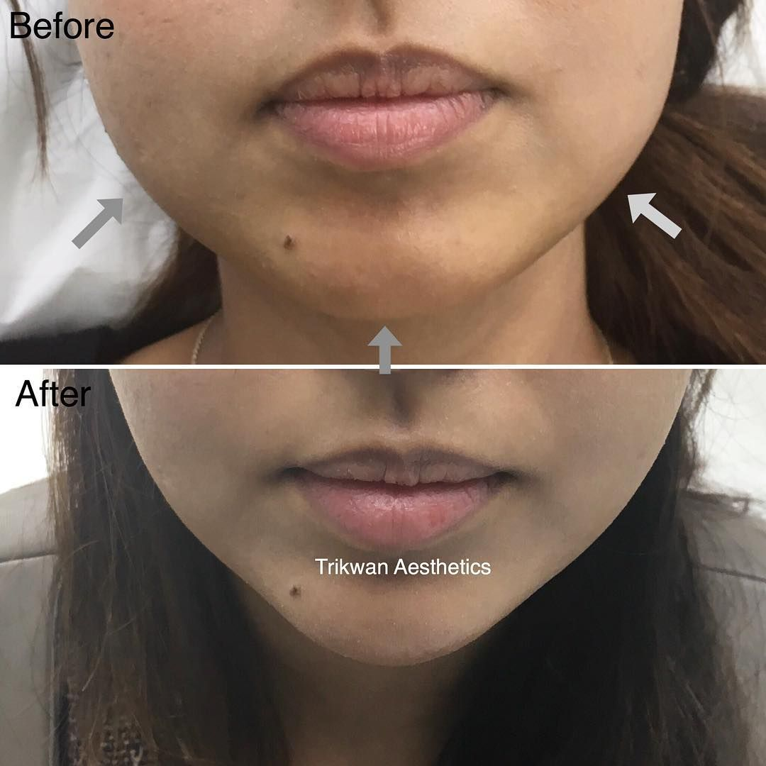 Alteration of jawline from square to v-shape using chin