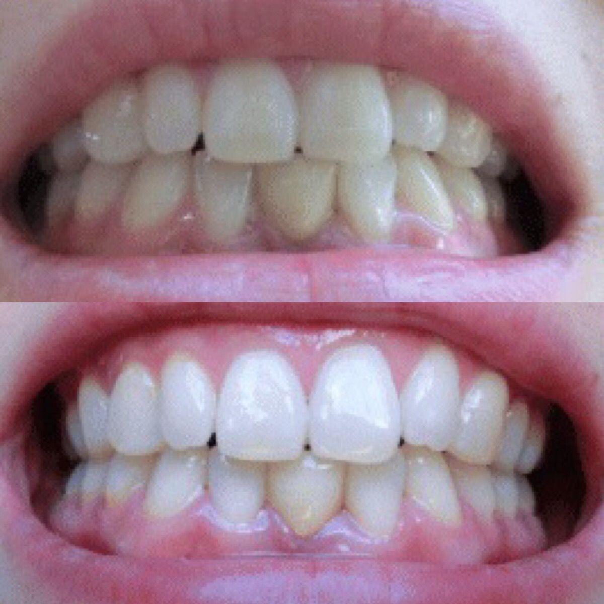 あんなに黄色かった歯が 歯医者さんの方法を試したらたったの1ヶ月で 裏技ビューティー 美容 美容の裏技