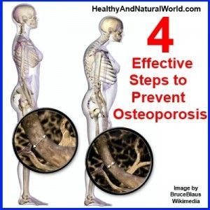 16++ What does osteoporosis do to the bones ideas in 2021