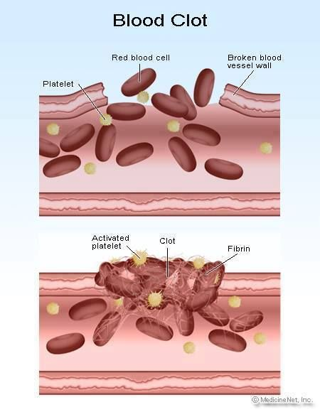 Hemostasis is the body\'s natural ability to stop bleeding, the ...