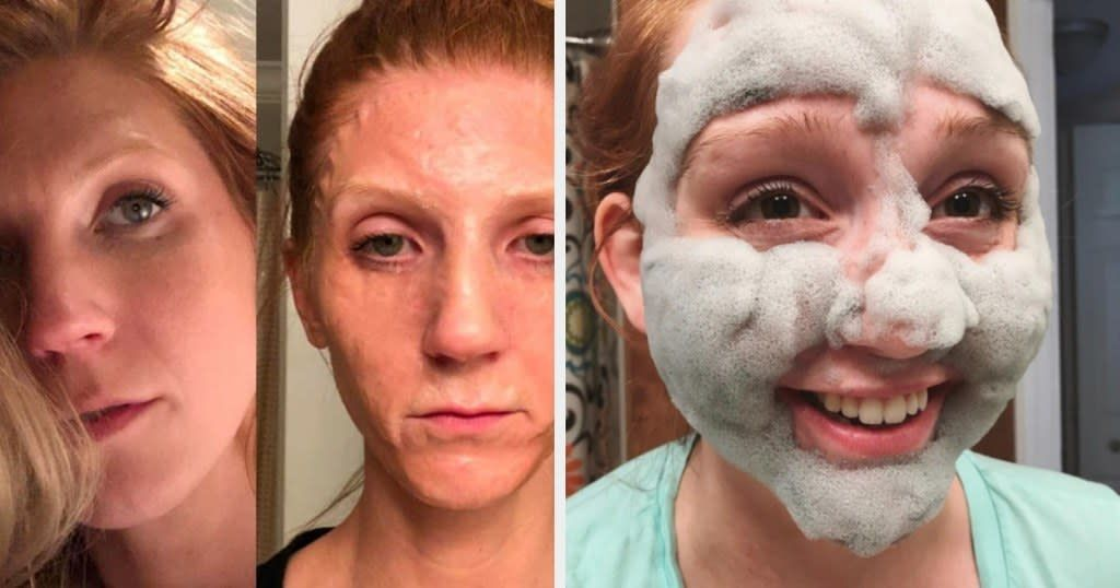 coffee face mask before and after