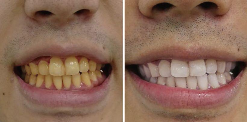 歯 黄ばん 白く 裏 する 技 だ を