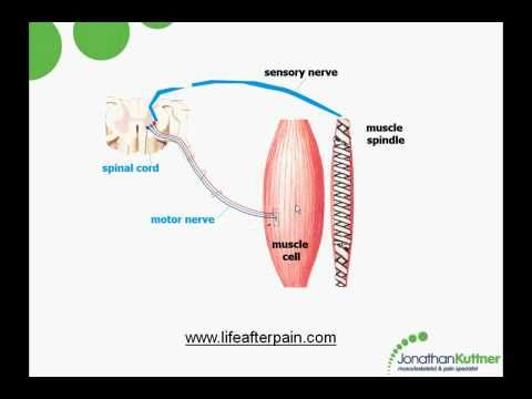 Fibro Files Myofascial Trigger Points In Chronic Muscle Pain