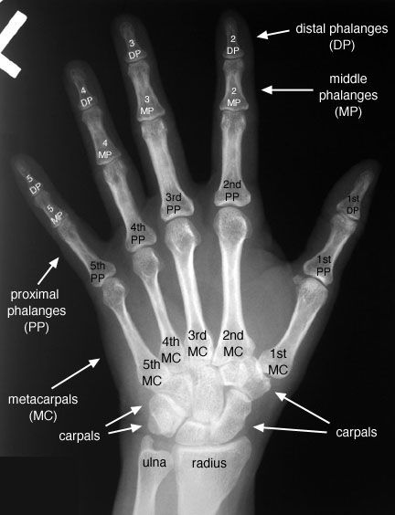 radiology+images | Hand -- Posteroanterior (PA) View, Labelled ...