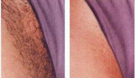 Before And After Laser Hair Removal On The Bikini Area Bikini