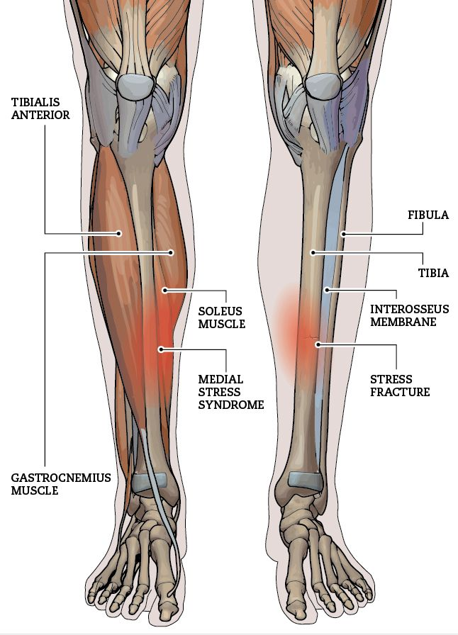Medial Tibial Stress Syndrome Tibial stress injuries   Gym ...