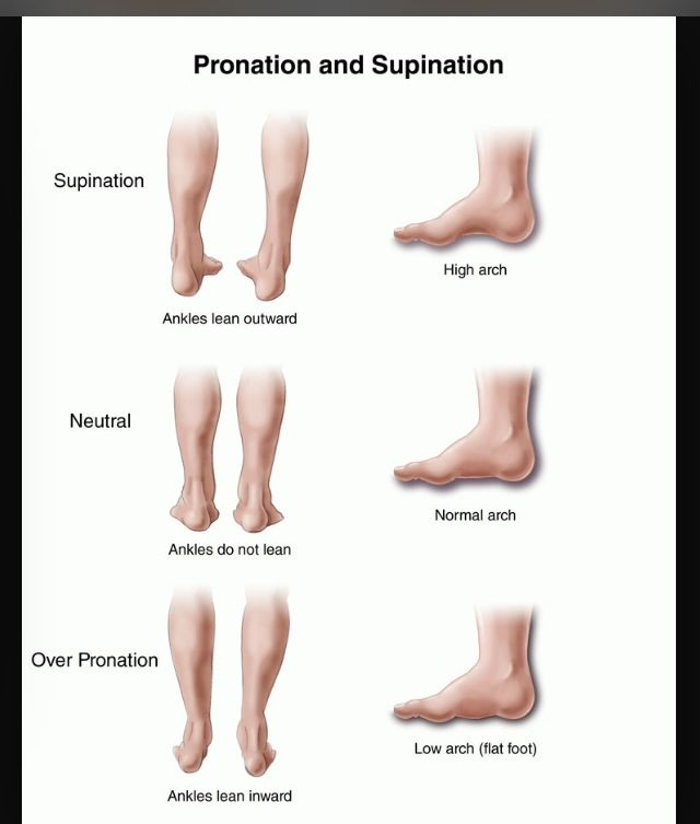 Flat feet · Supination vs pronation