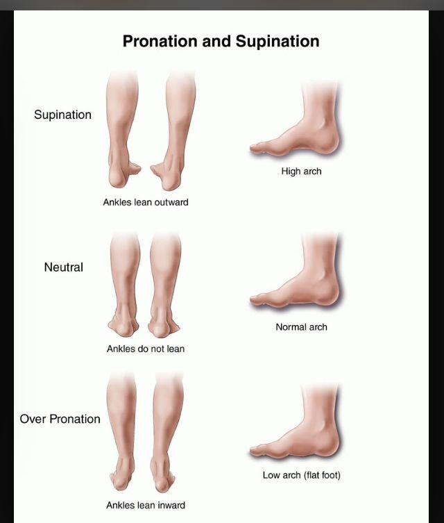Supination vs pronation   We're Talking Bodies   Sore ...
