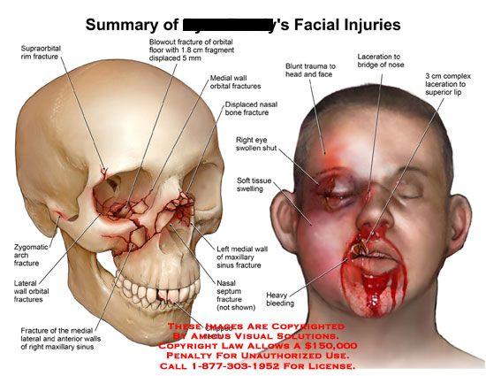 amicus,injury,facial,face,supraorbital,rim,fracture