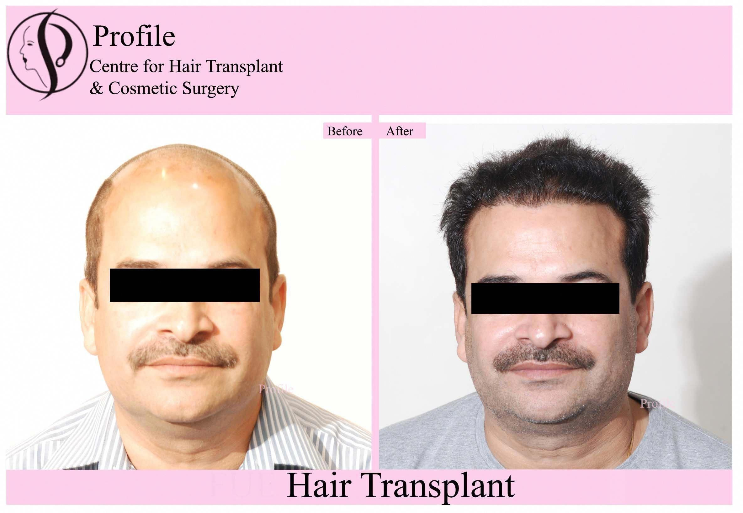 Check Out The Latest Result Of Body Hair Transplant Surgery Surgery Provides With Latest Techniqu Hair Transplant Surgery Hair Transplant Hair Transplant Cost