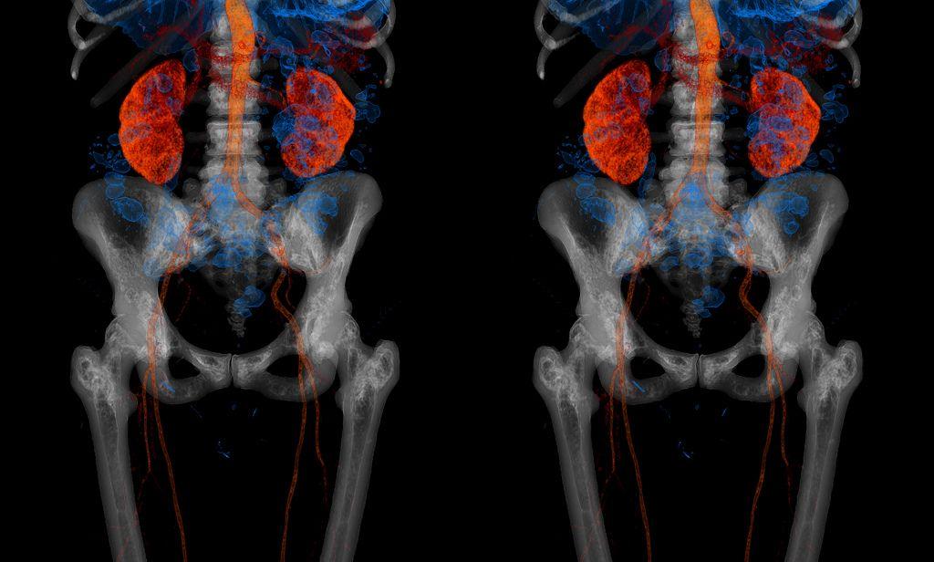 Los riñones humanos | Imágenes de medicina y anatomía alucinantes ...