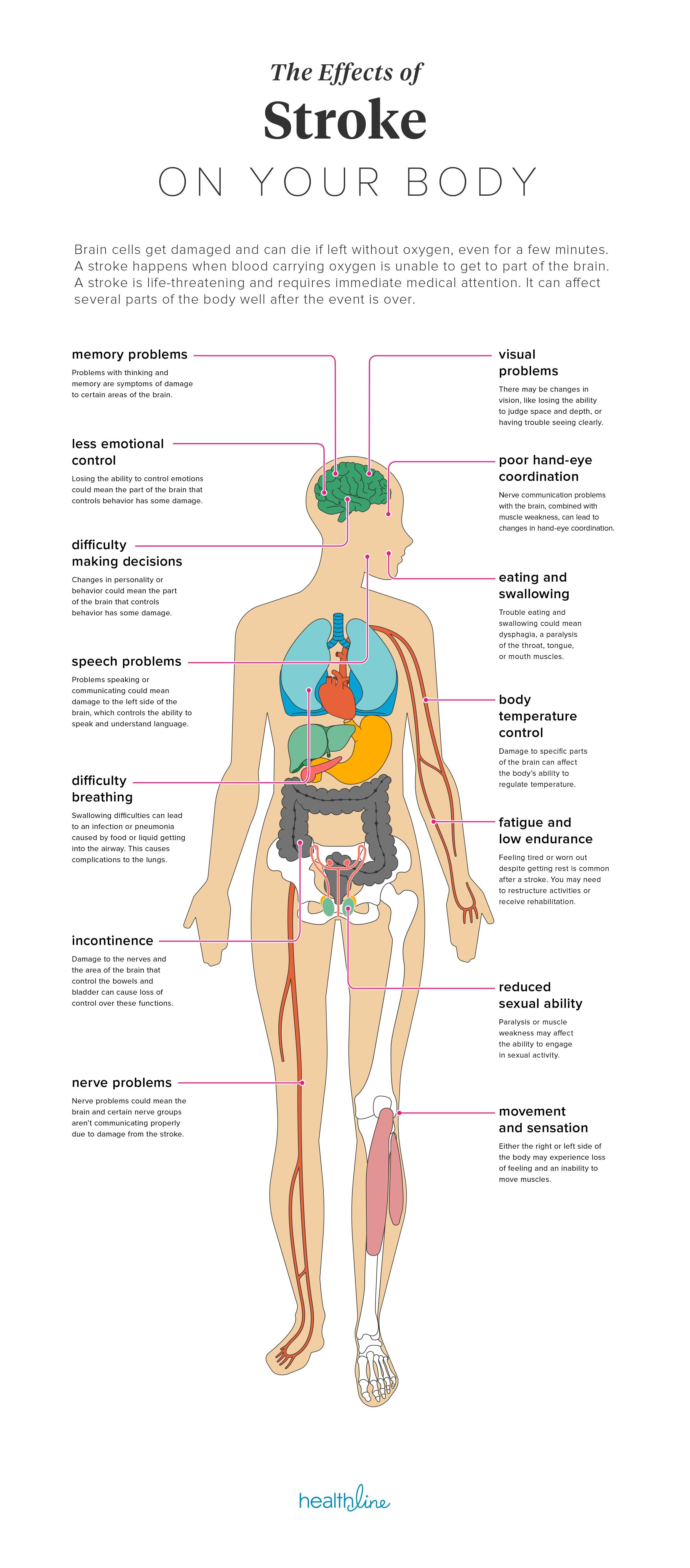 Left Side Of Body Anatomy Human Anatomy Drawing Sleep Apnea