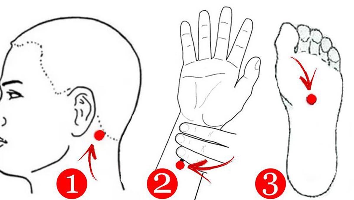 punctele de acupunctură varicoză