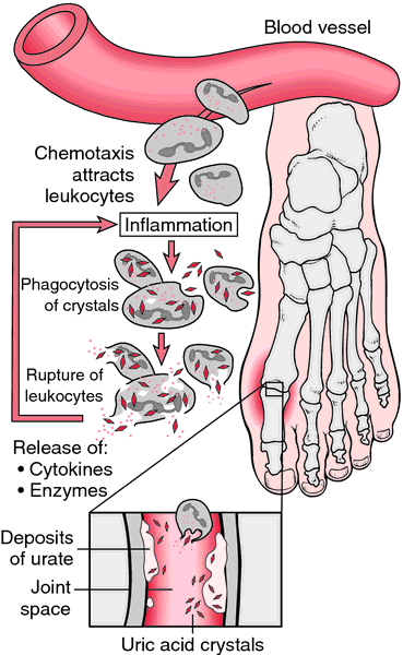Uric Acid Crystal Deposition In Joint Reflexology