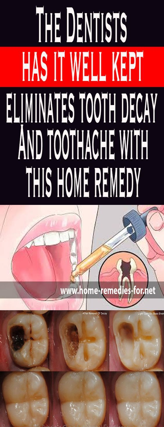 The Dentists has it well kept eliminates tooth decay And toothache