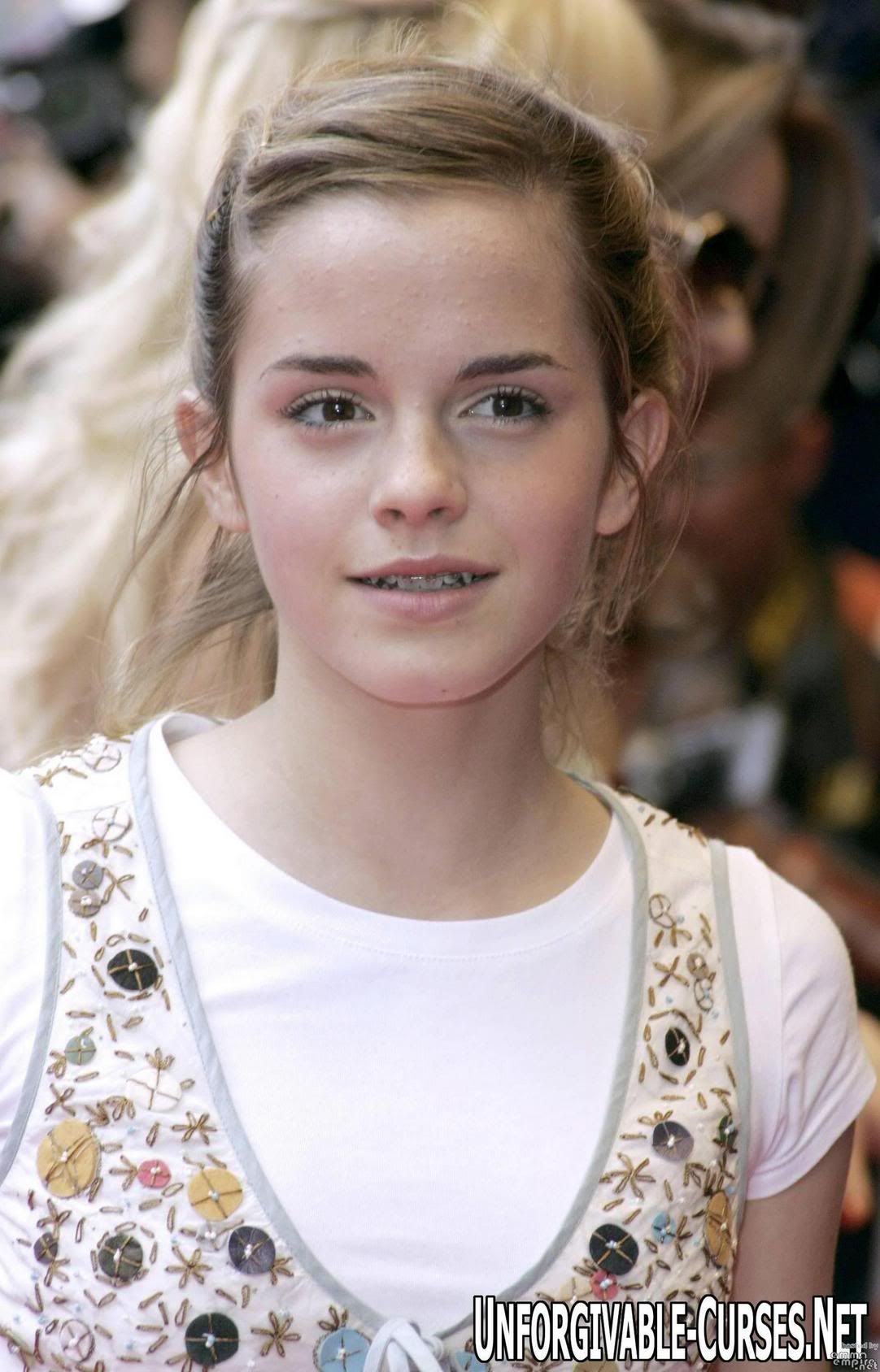 emma watson teeth heres a pic | braces and teeth stuff | pinterest