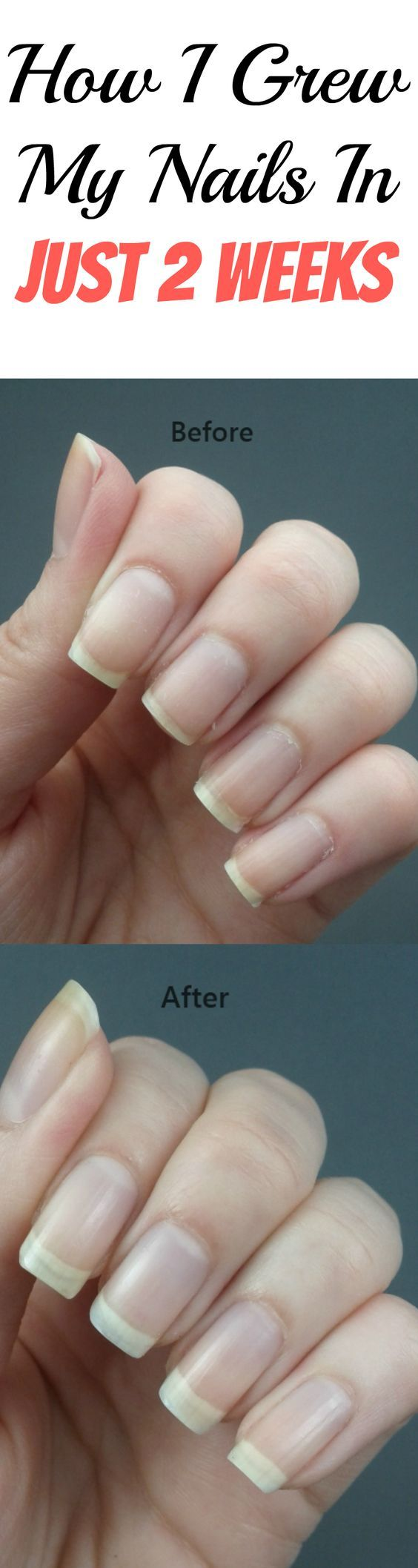 How I Grew My Nails In Just 2 Weeks | Nail problems, Grow nails fast ...