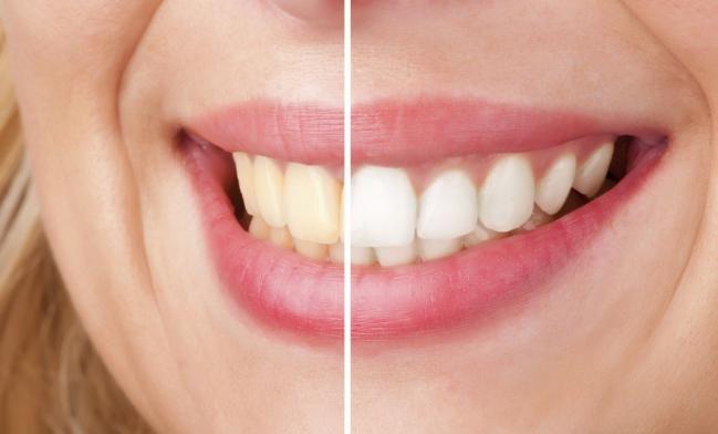 Si fumas, tomas té, café, mate, refrescos o hace mucho que no visitas a tu odontólogo, puede que tus dientes necesiten acabar con ese aspecto amarillo poco atractivo que tienen. Sonríe abiertamente luego de aprender cómo blanquear lo dientes de forma natural.Además de las causas antes descriptas, otras razones po