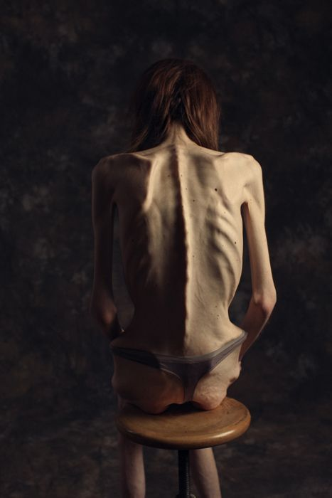 Anorexia Back Google Anatomy Pinterest Reference