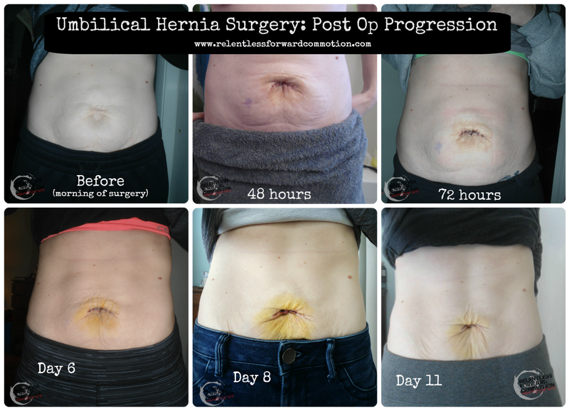 Adventures with Umbilical Hernia Surgery - The First 72 Hours ...
