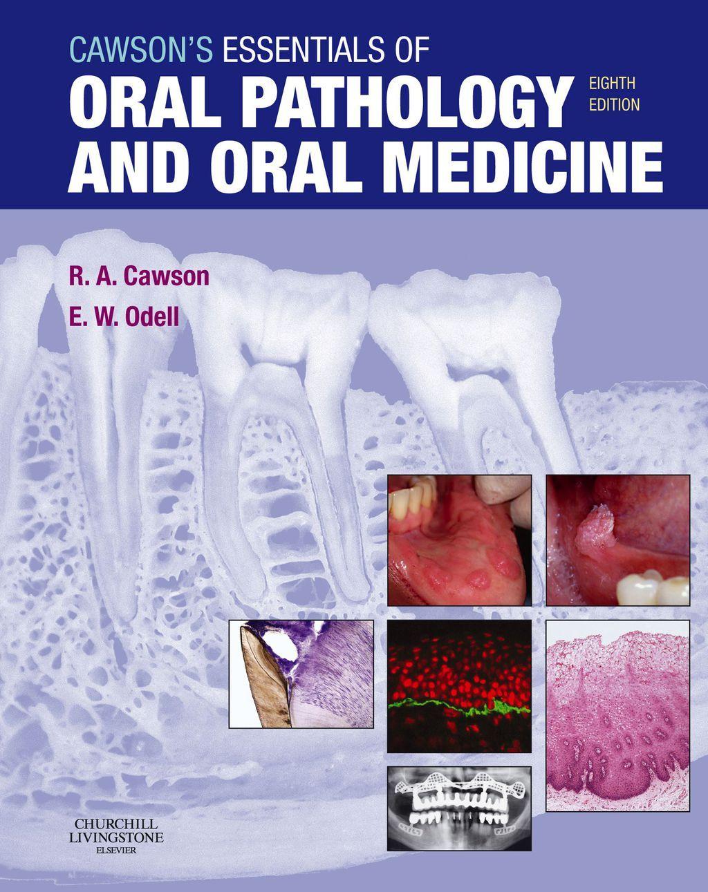 Cawson S Essentials Of Oral Pathology And Oral Medicine Ebook