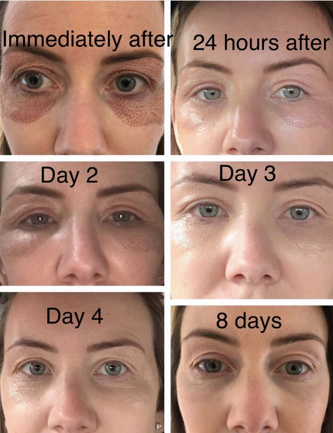Plasma Pen Eye Treatment Here S What You Can Expect For The First Week Plasmapenbystacey Skin Tightening Treatments Skin Therapy Laser Skin Treatment