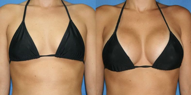 Great cream for breast enlargement By reader Jenny Peterson