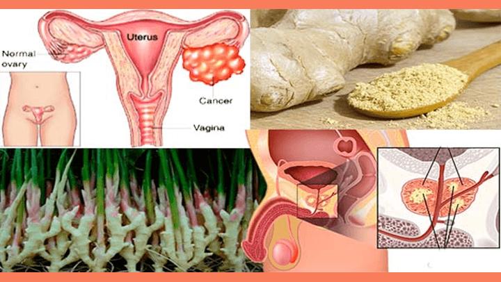 Sabías que el jengibre destruye el cáncer de próstata, de los ovarios y del colon mejor que la quimioterapia.