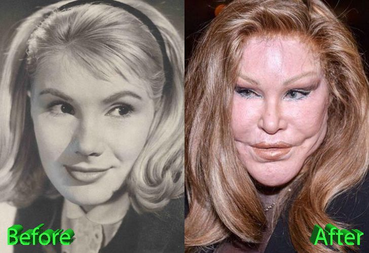 Catwoman Plastic Surgery: From Bad To Worse | Ch Ch Ch ...