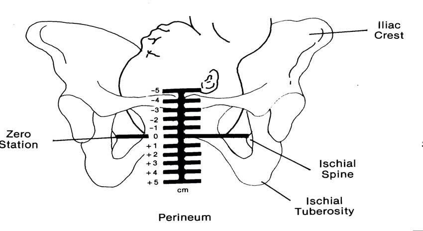 Diagram Showing Station Of Baby S Head In Relation To Pelvis As Labour Progresses