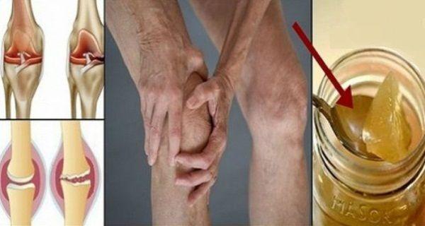 Sbohem drahé léky: Od bolesti kolen vám spolehlivě uleví tyto přírodní látky